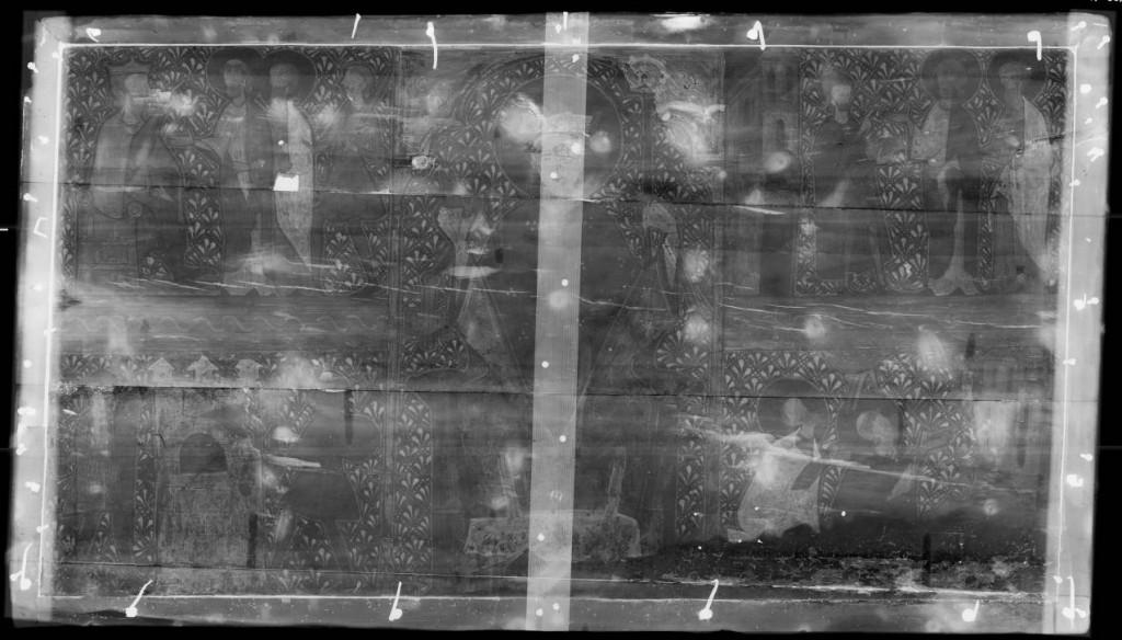 Imagen general con rayos X.