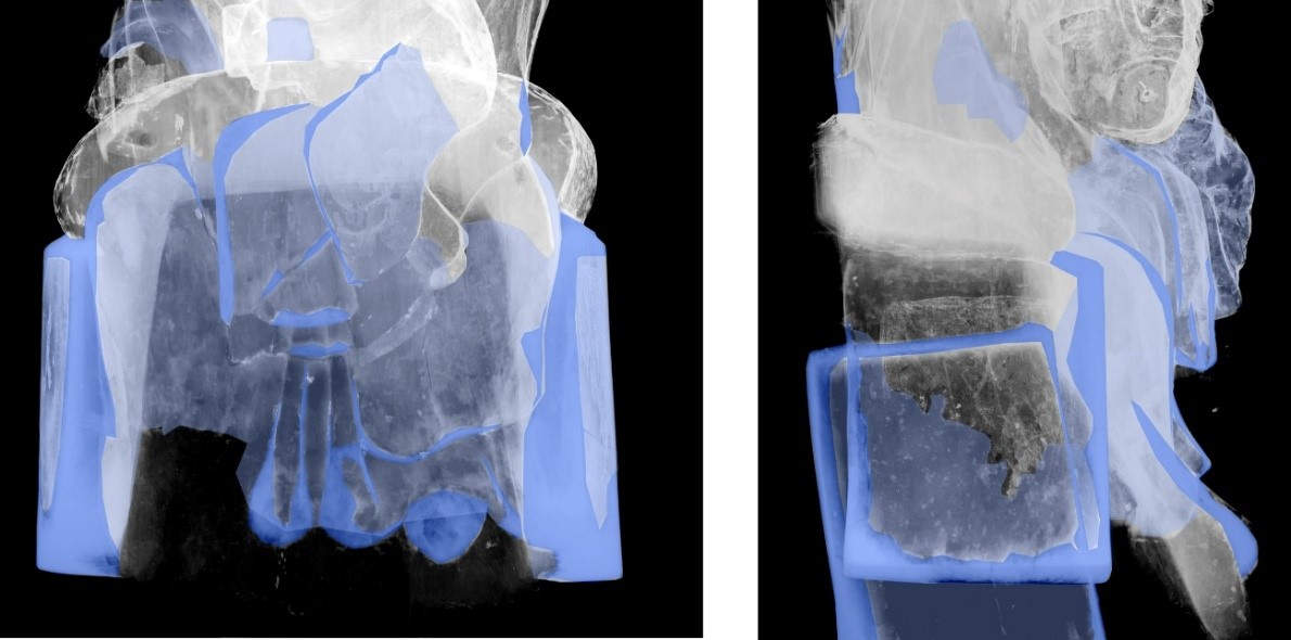 Details of the work in an X-ray. The intensity of the blue indicates a greater accumulation of plaster (X-ray: Comella, Martí, Masalles)